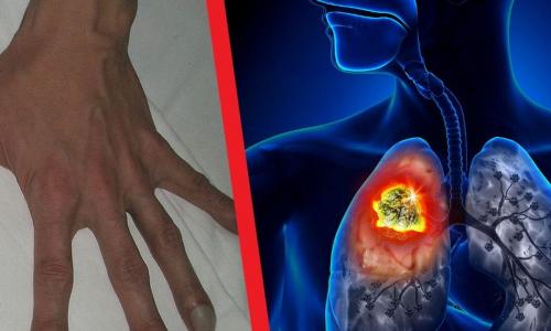 Врачи назвали неочевидный признак рака легких