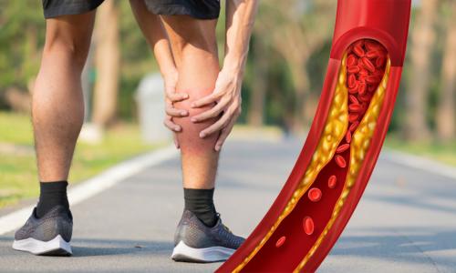 Боль в ногах оказалась симптомом опасной болезни